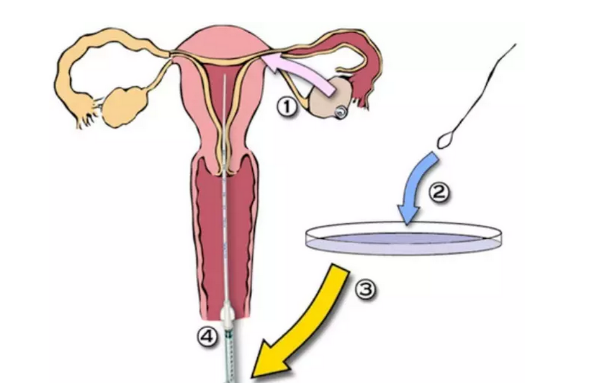 体外受精.png