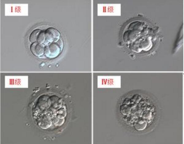 胚胎的评级